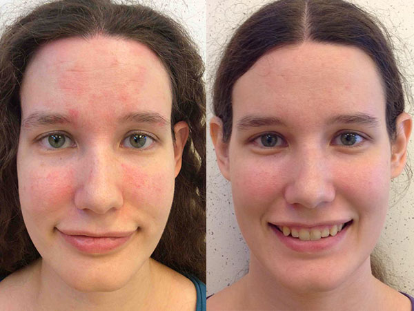 dermatitis before and after