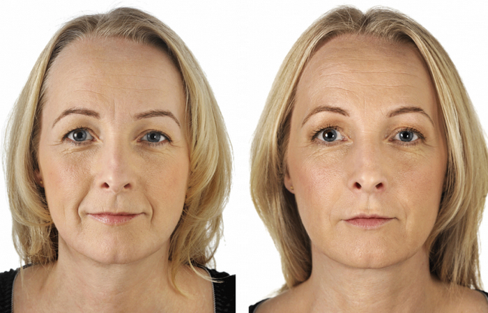 skin rejuventation before and after