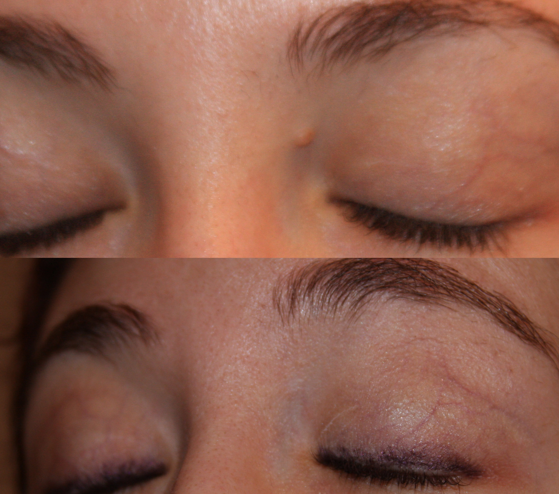 warts and moles before and after